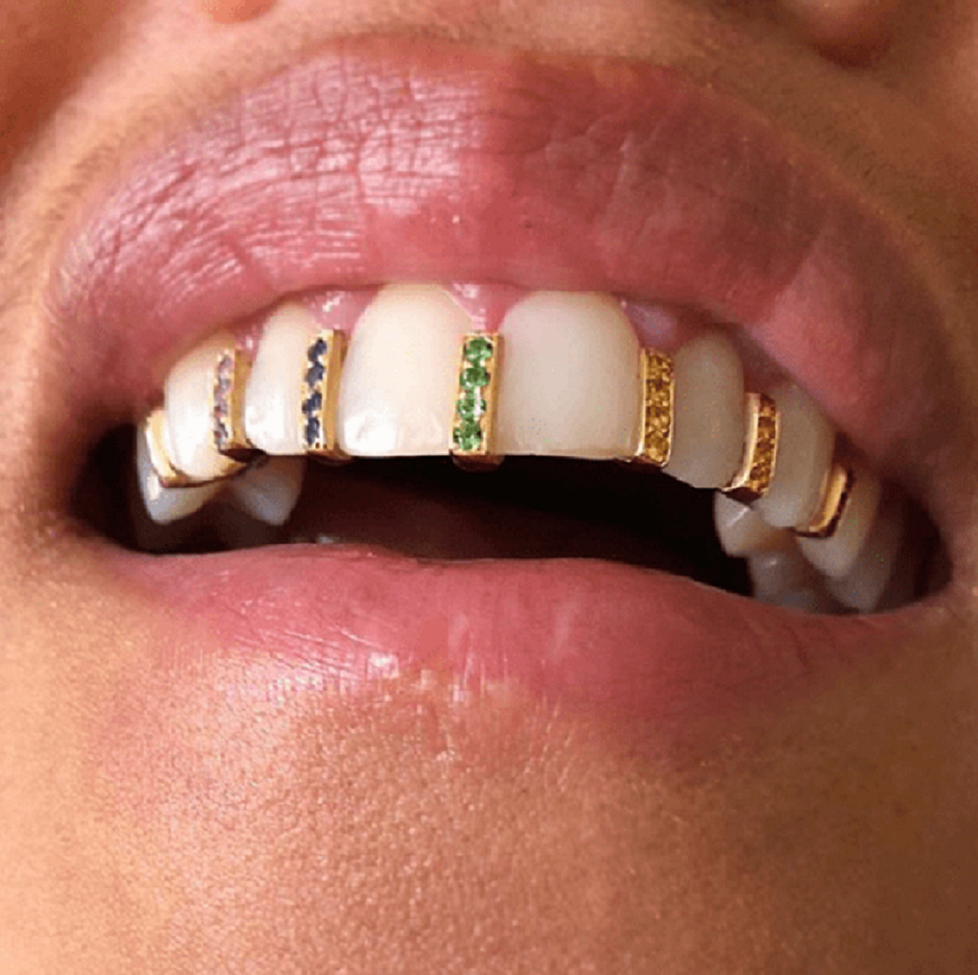 Blinged-Out Gold Platted Grillz with Glittering Rhinestones
