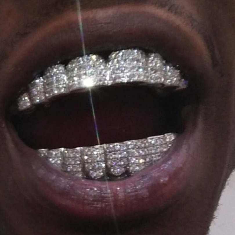Silver Rhinestones Iced Out Grillz Set